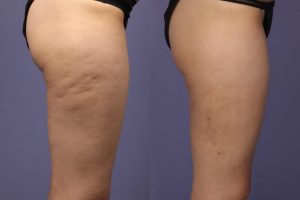 how-bad-is-your-cellulite---different-tyoes-of-cellulite-hyk0
